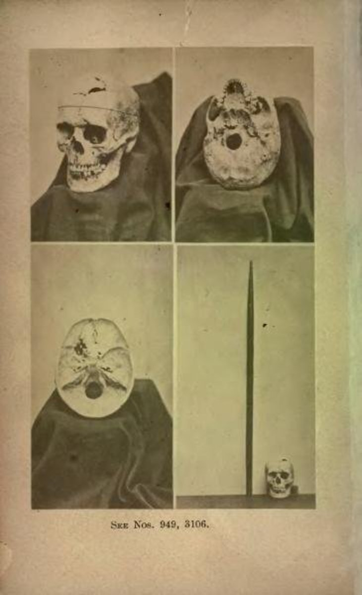 Actual Skull of Phineas Gage. Bottom left is the tamping iron shown beside the skull.