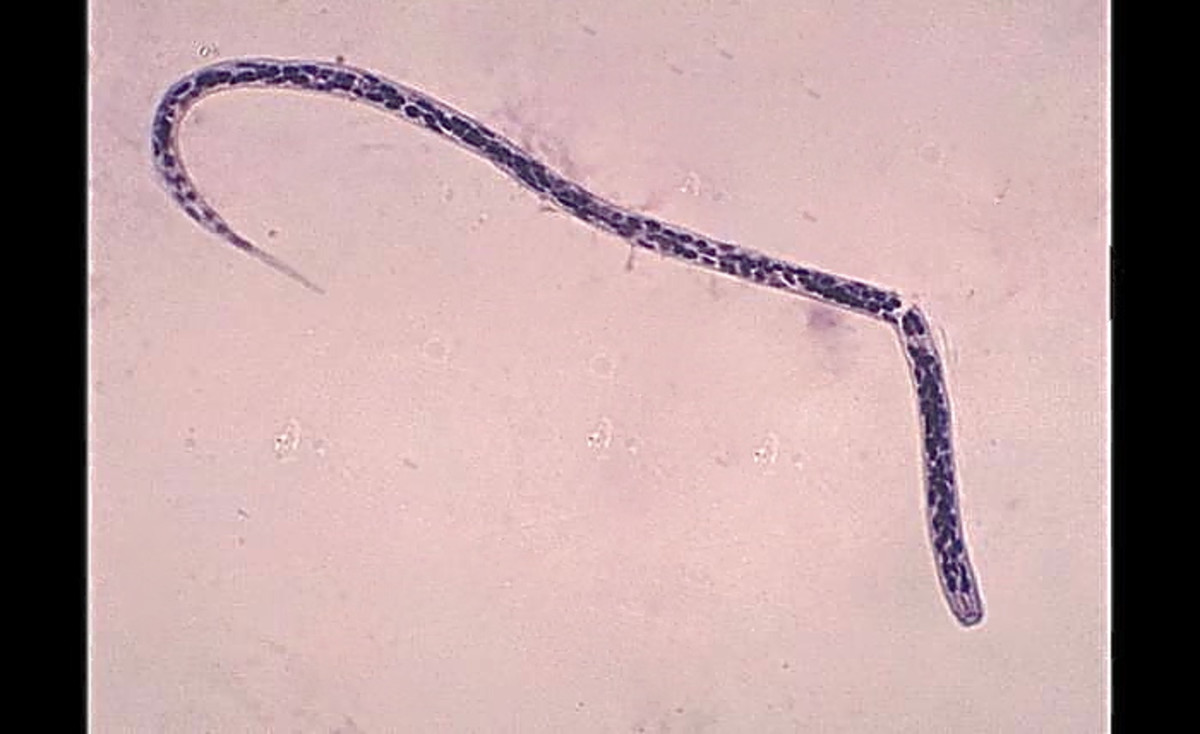 An Onchocerca volvulus microfilaria has a curved and pointed tail.