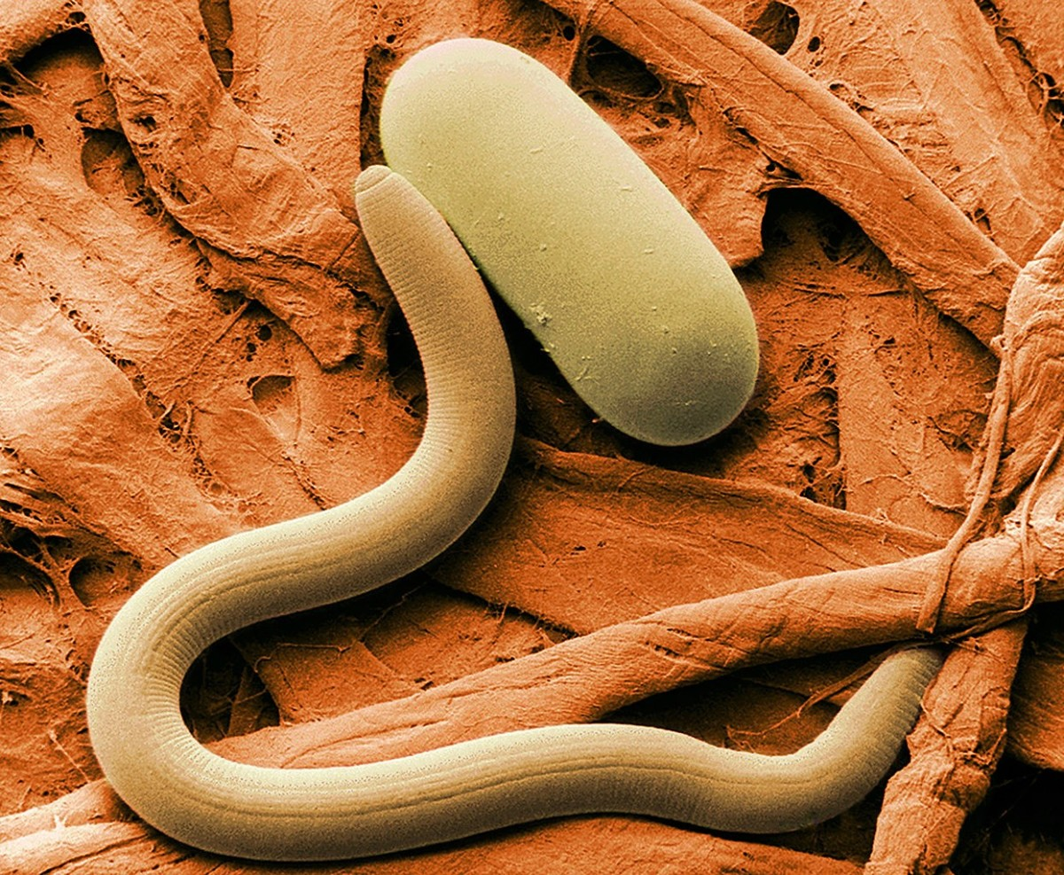 A soybean cyst nematode and an egg (colourized scanning electron micrograph)