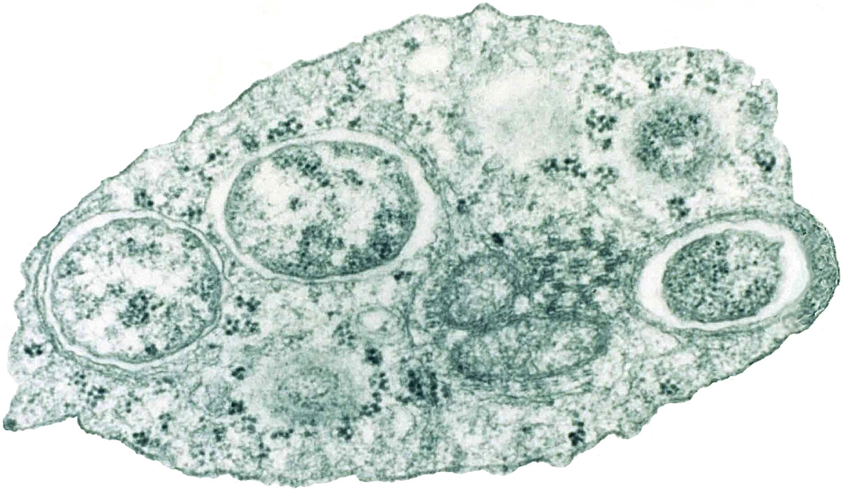 Wolbachia (the large, roughly circular structures) inside the cell of an insect