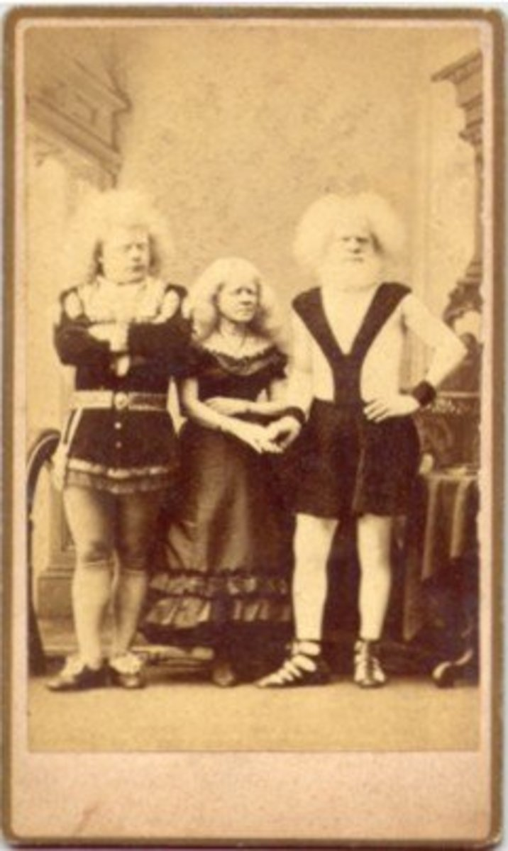 Rudolph Lucasie and his Familie were albinos of African descent. Phineas Barnum found them during a visit to Amsterdam in 1857. He brought them back to America where they became one of his most popular exhibits.  They appeared in his American Museum.
