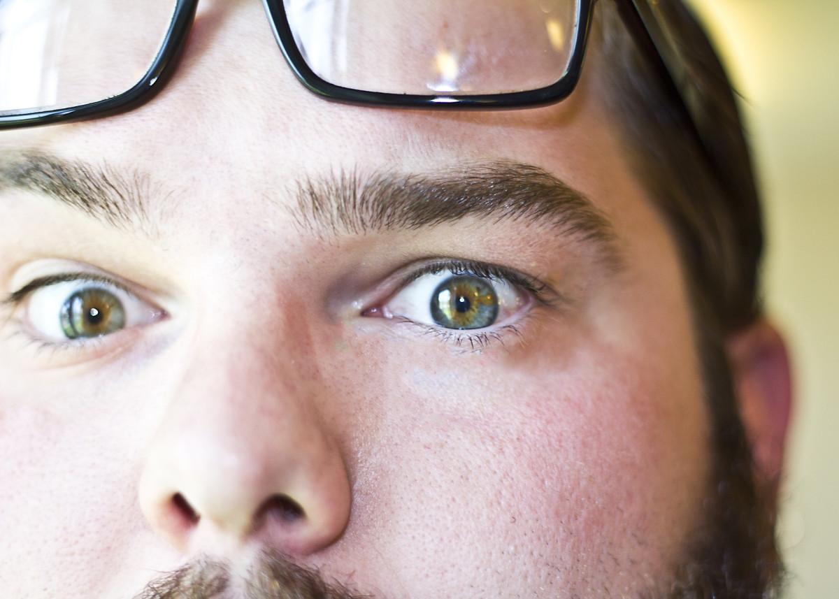 This is a good example of heterochromia.