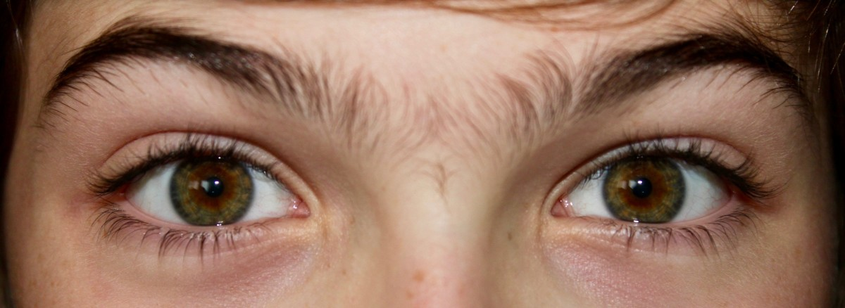 Central heterochromia causes melanin to be  concentrated around the pupil.