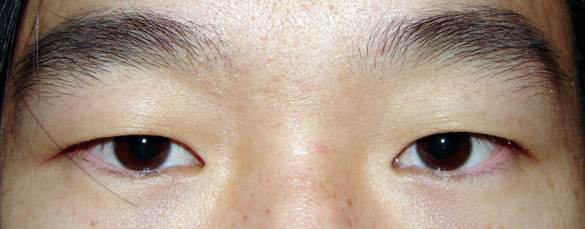 True black eyes do not exist, rather there are brown eyes so dark that it is hard to distinguish between the pupil and the iris in regular light.