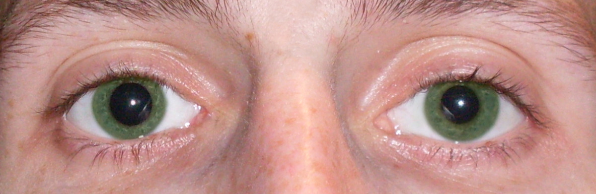This is an example of anisocoria in green eyes!  Talk about rare!