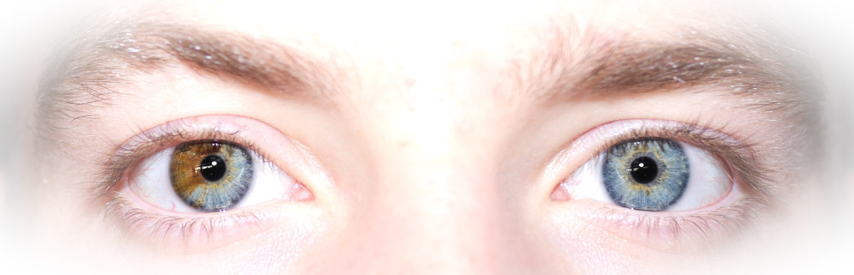 This photo shows heterochromia when one eye is partially a different color, rather than the entire iris being a different color.