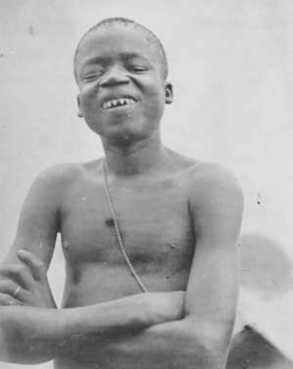 Ota Benga showing his sharpened teeth.