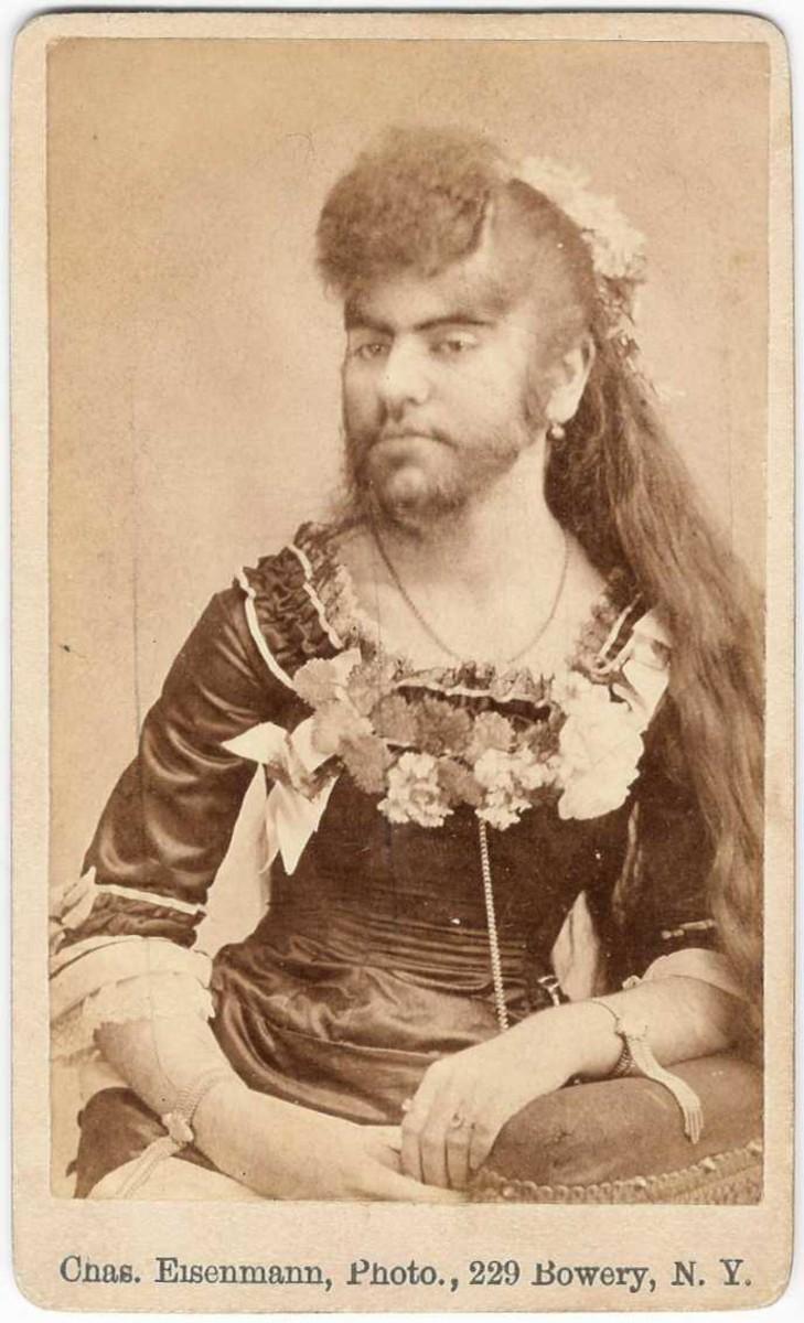 Hirusutism. Annie Jones, a bearded lady.