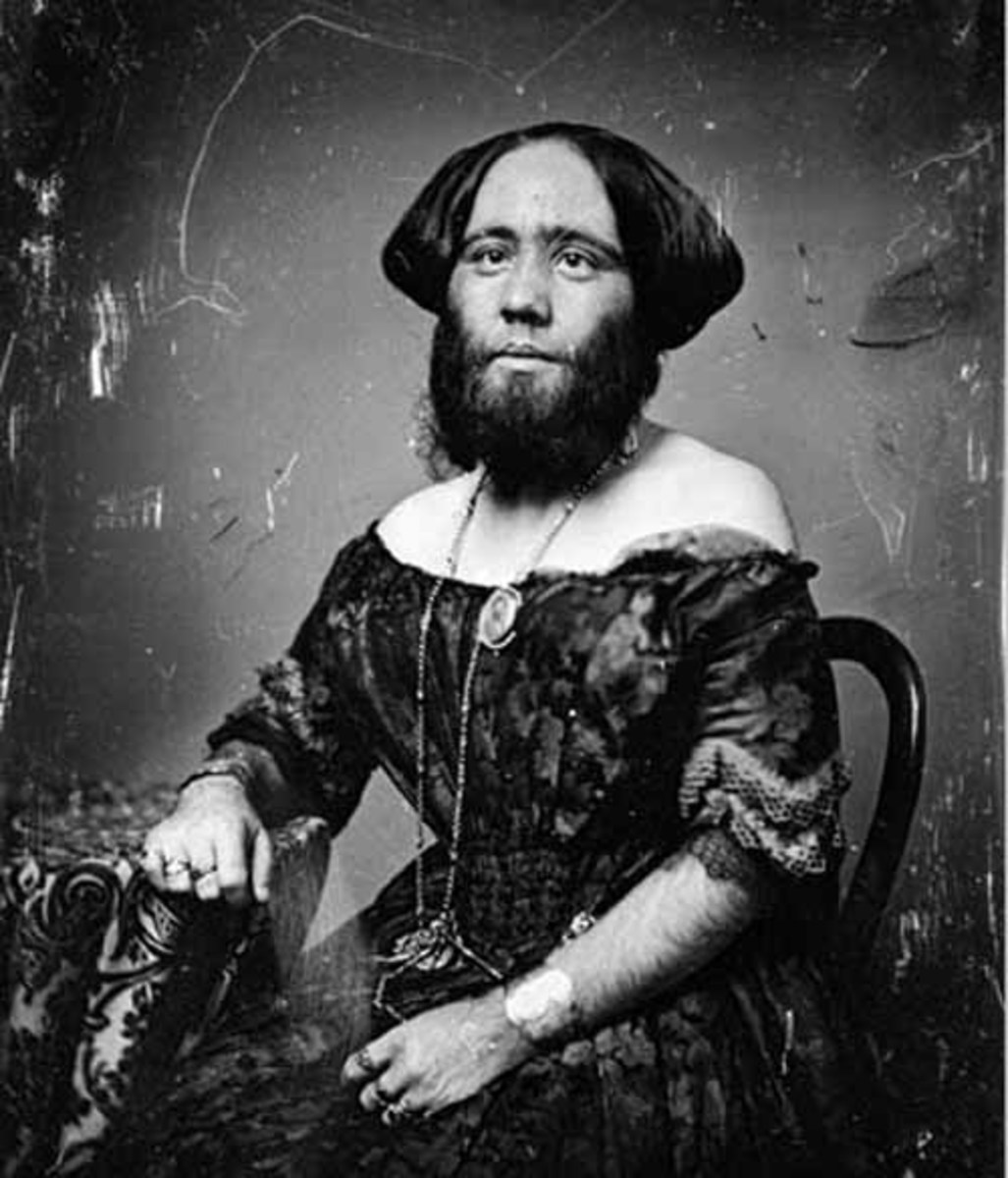 Clofullia participated in a sideshow at P.T. Barnum's American Museum in New York City alongside her young son, who inherited her hypertrichosis.