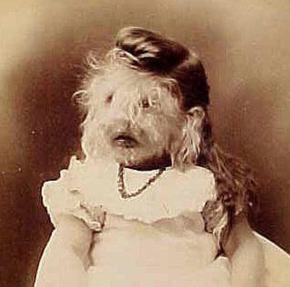 "Called the ""Woolly Baby"" of Minnesota, Alice performed with a show that toured the Midwest."