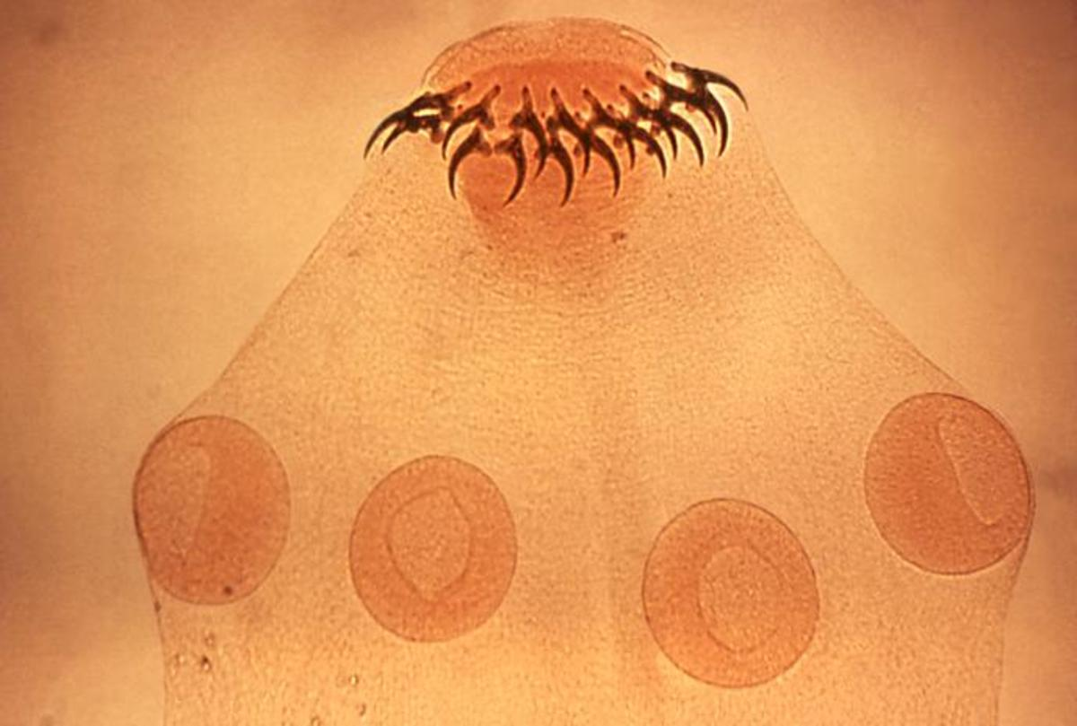 Tapeworm (up close).
