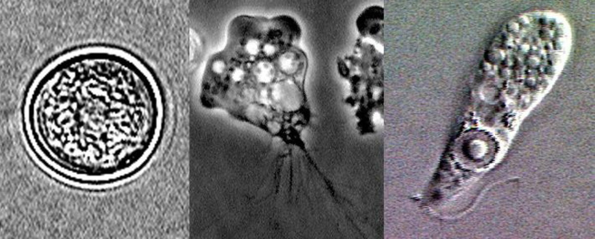 Naegleria Fowleri in its three stages of development (Left to right).