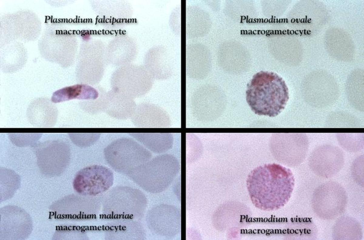 This Giemsa stained slide reveals a P. falciparum, P. ovale, P. malariae, P. vivax, gametocyte. The male (microgametocytes) and female (macrogametocytes), are ingested by an Anopheles mosquito during its blood meal.