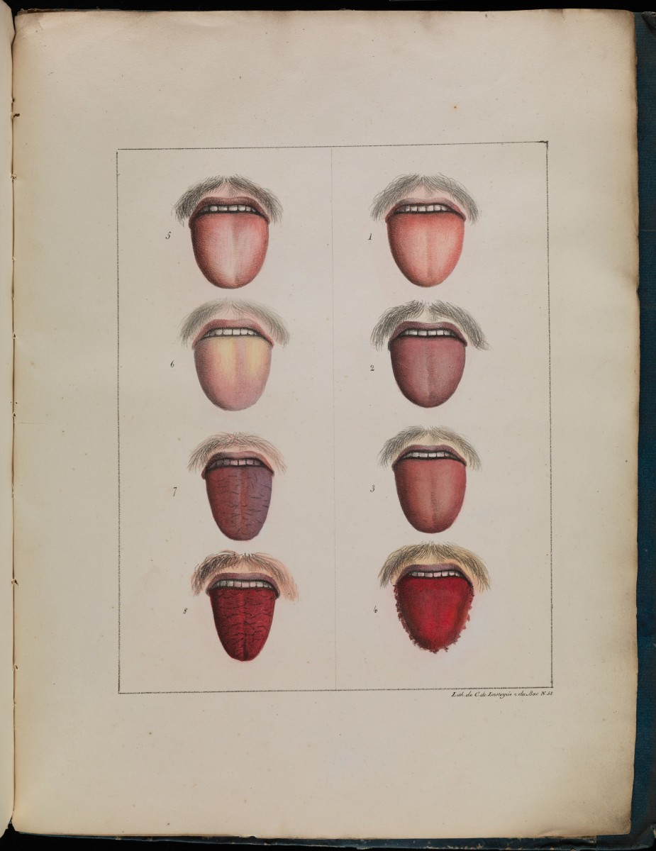 The tongue of a patient through the stages of yellow fever.