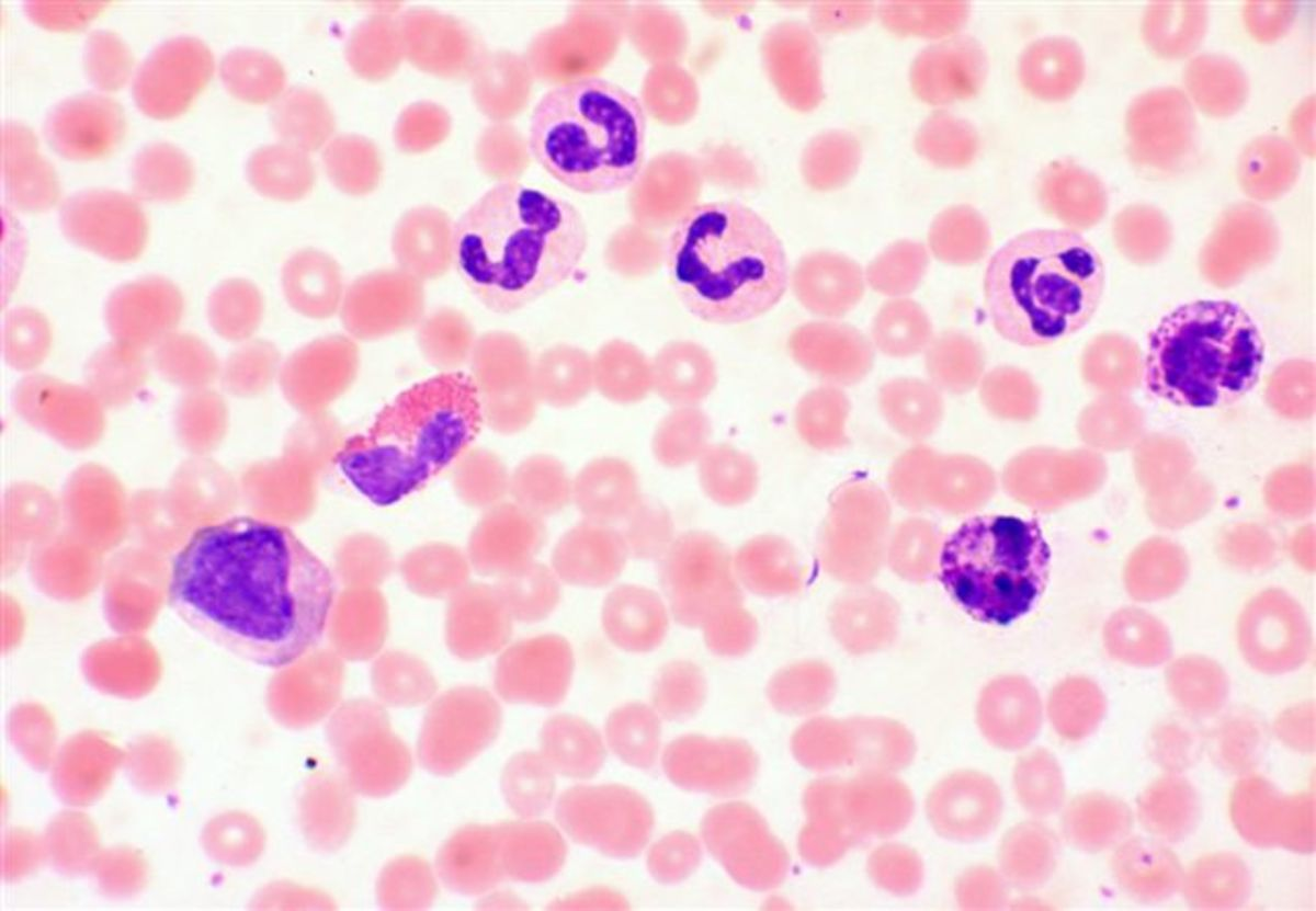 A normal blood smear in the hematology department. This is what we see under the microscope.