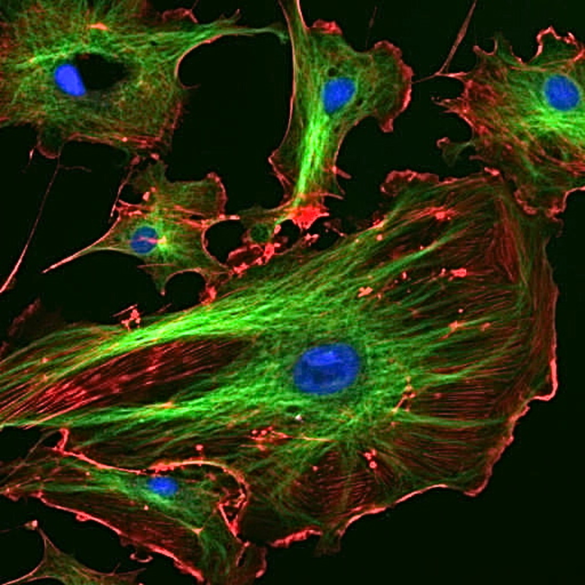 These are cells from a cow that have been stained to show the cytoskeleton. Blue = nucleus, green = microtubules, red = actin filaments