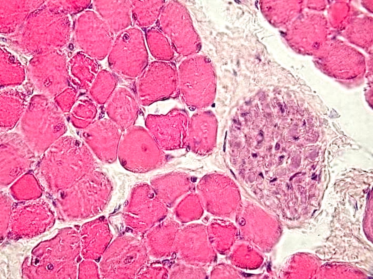 A cross section through skeletal muscle fibers and a nerve bundle