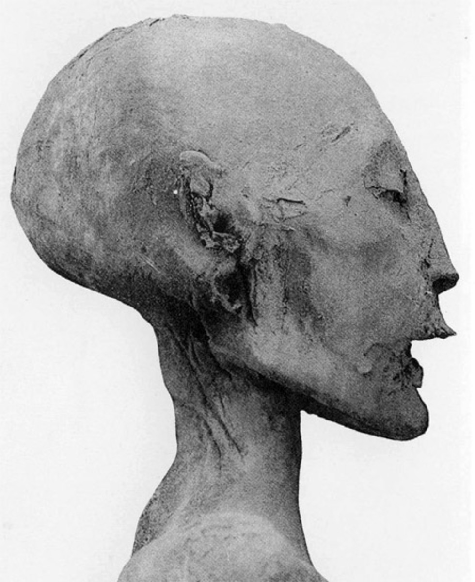 The head of the mummy of the 'Younger Lady' - identified by the DNA analysis as the mother of Tutankhamun