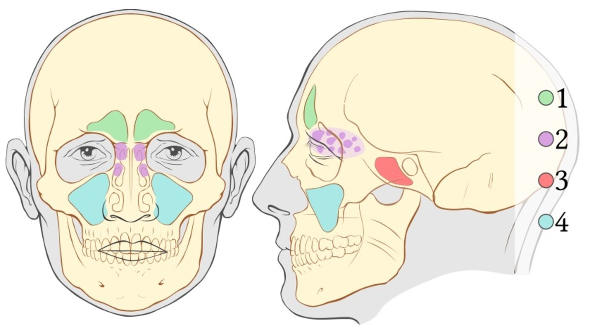 1 - frontal sinus, 2- ethmoid sinuses or ethmoidal air cells, 3 - sphenoid sinuses and 4 - maxillary sinuses