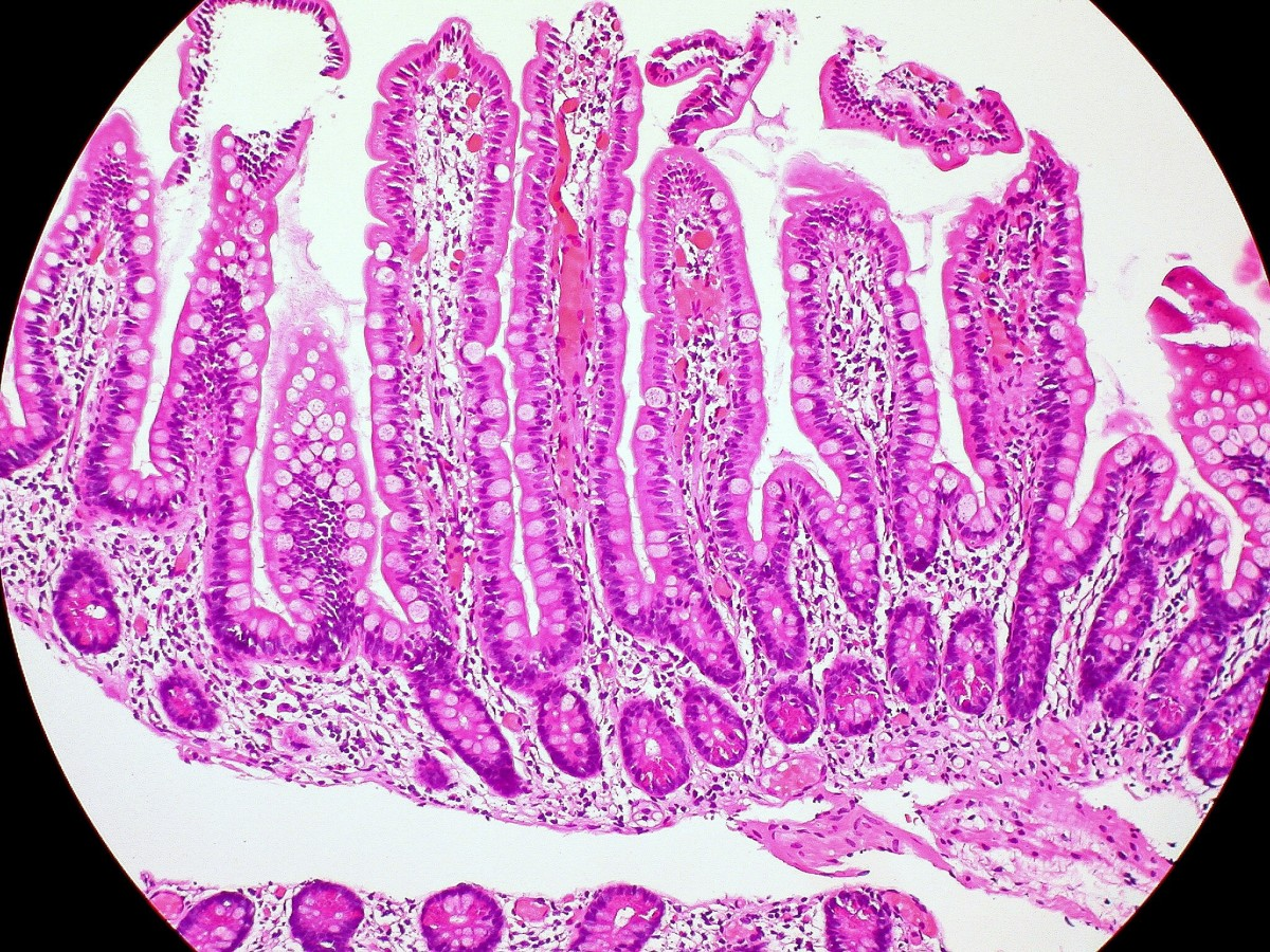 This is part of the mucosa lining the small intestine. The folds are known as villi. They increase the surface area for the absorption of digested food.