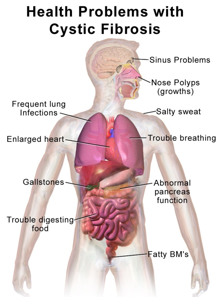 Mucus in the Human Body: Functions and Health Problems