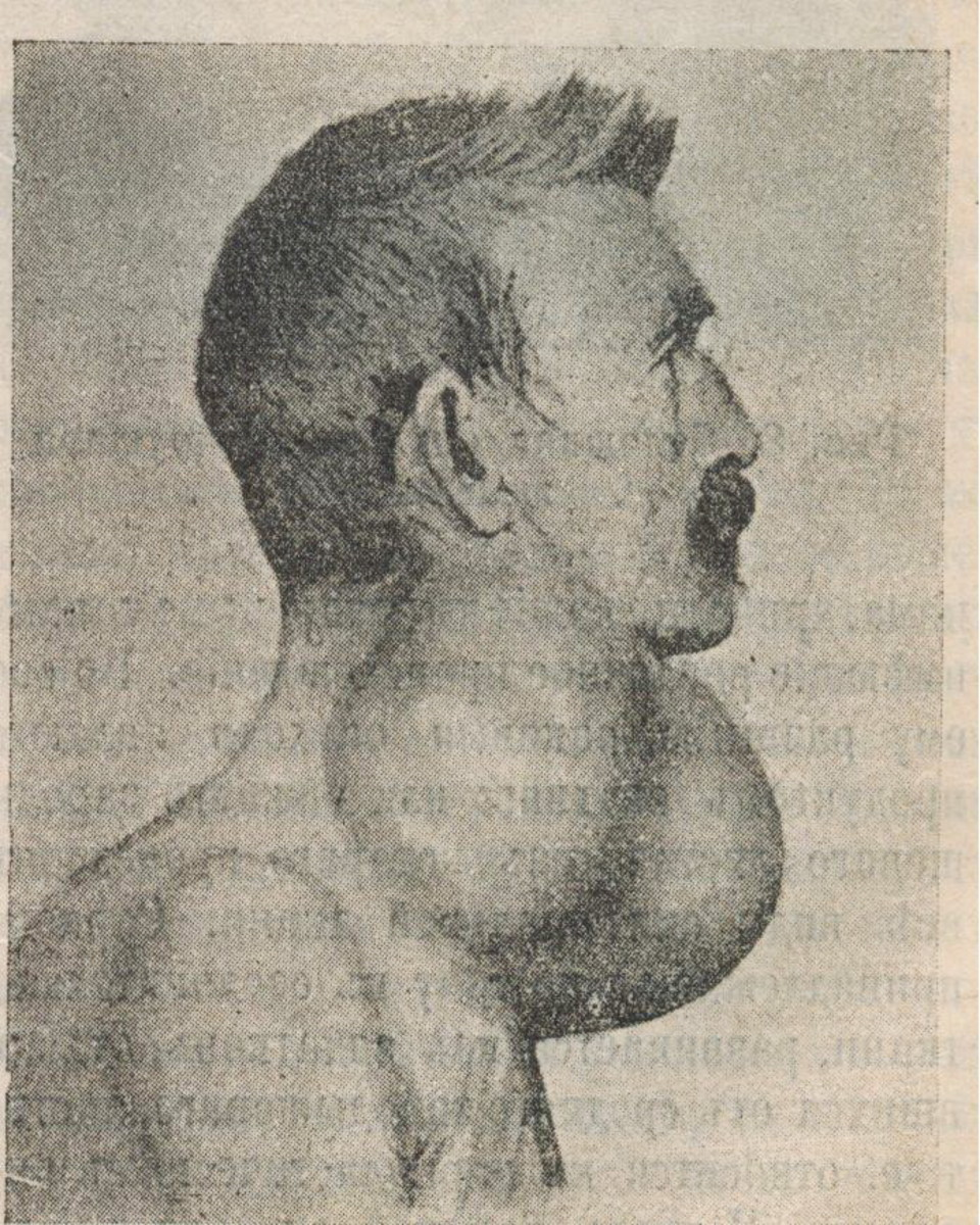 Thyroid cancer in a man.