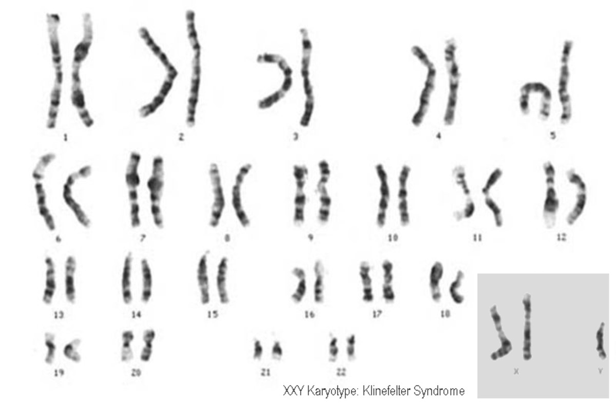 This is a karyotype of an individual with Klinefelter Syndrome: the individual has two X chromosomes and a Y chromosome (47, XXY).