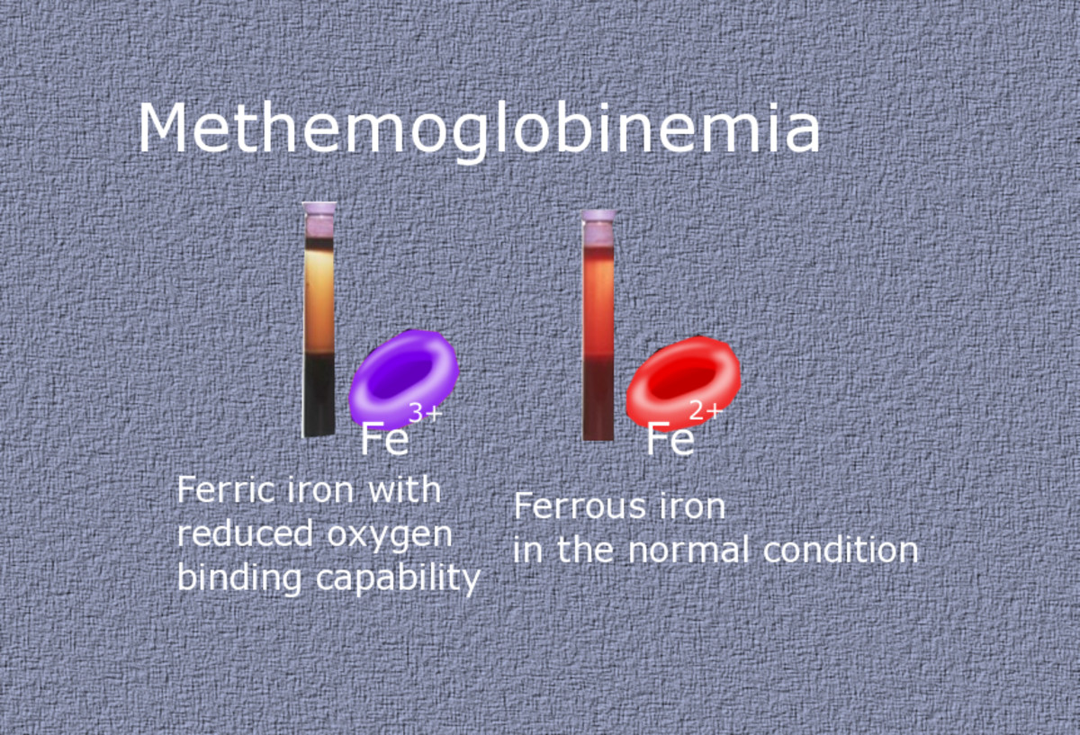 Blue skin could result from the accumulation of methemoglobin: hemoglobin with oxidized iron that cannot bind to oxygen.