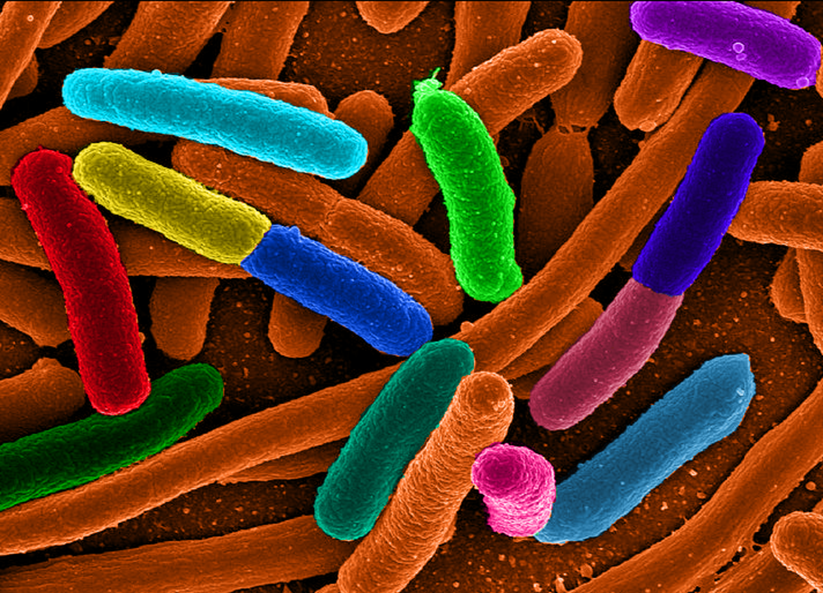 A fake colour micrograph of dividing E. coli