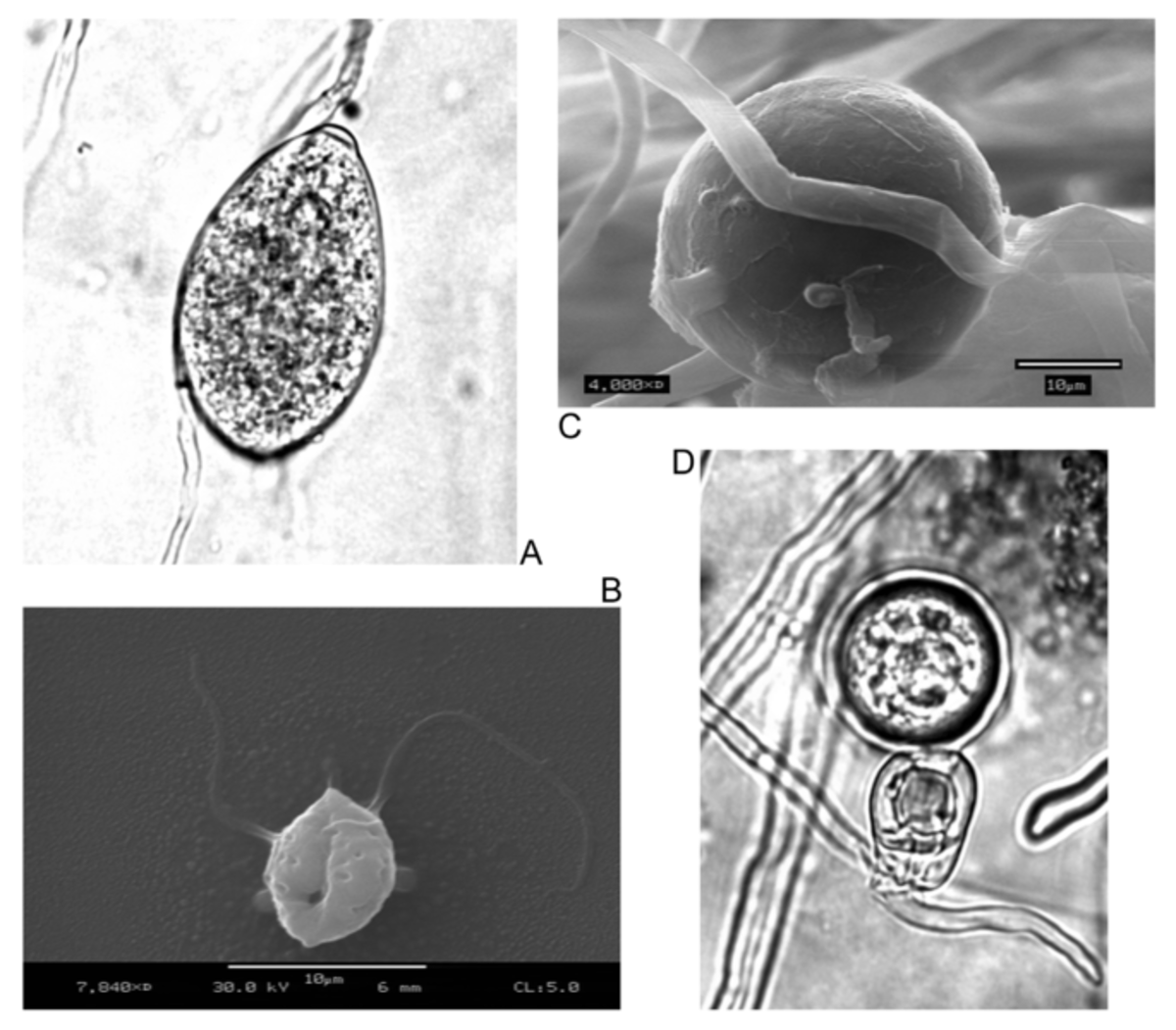(A) Sporangia, (B) Zoospores, (C) Chlamydospores, (D) Oospores.