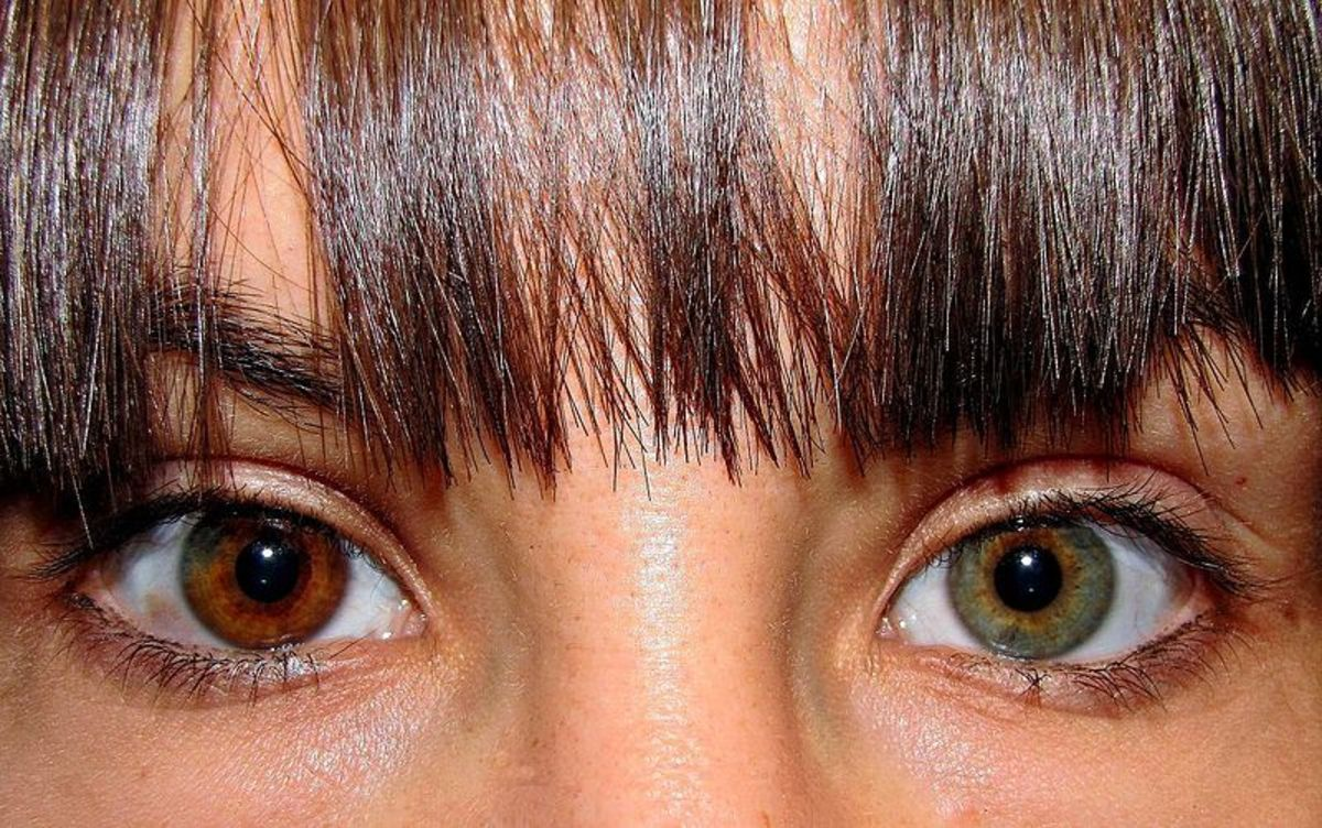 A woman with Heterochromia Iridium.