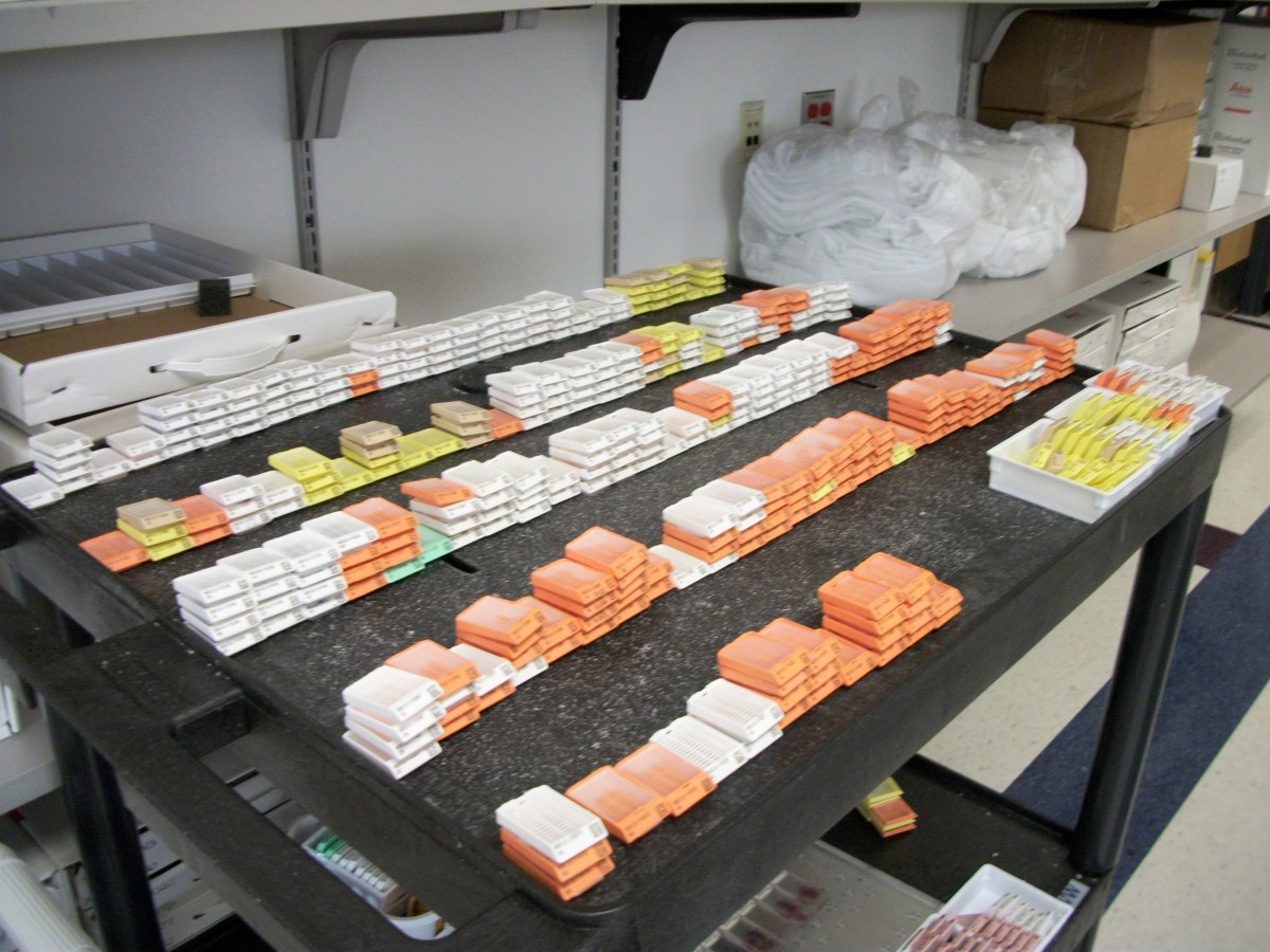 one days worth of paraffin blocks in the histology laboratory