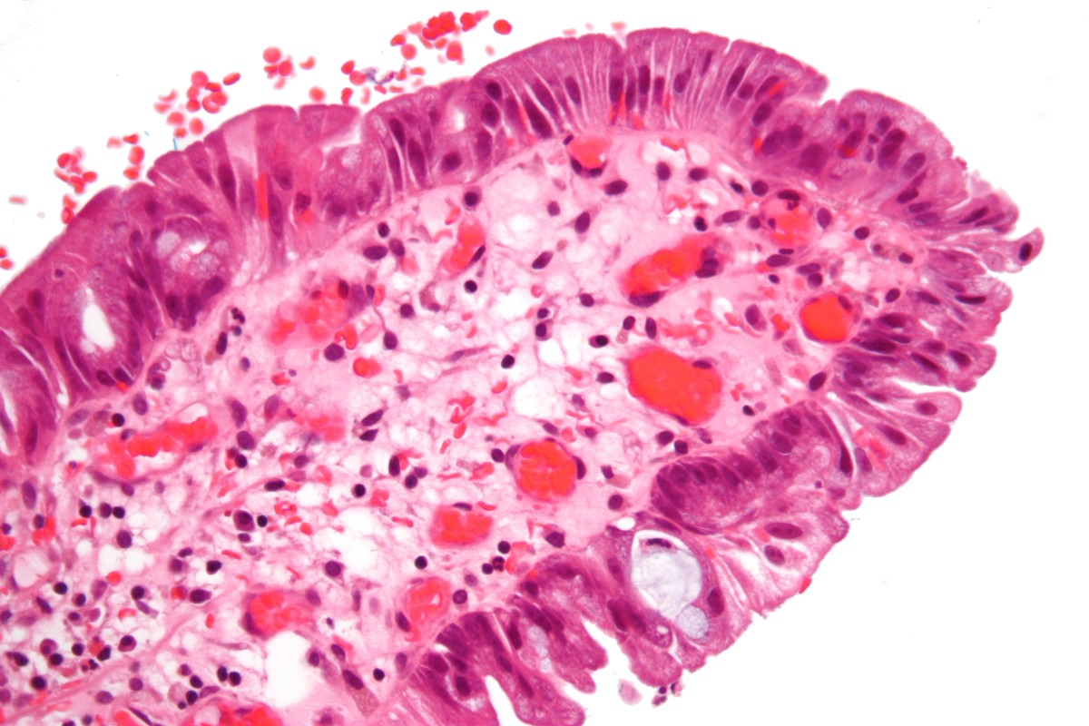 Dark blue-cell nucleus; light pink-cell cytoplasm; red-erythrocytes (red blood cells)