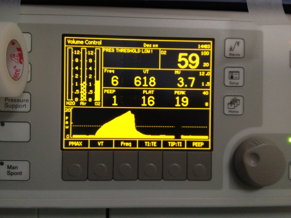 The ventilator used during anesthesia provides much useful information about breathing and the lungs.