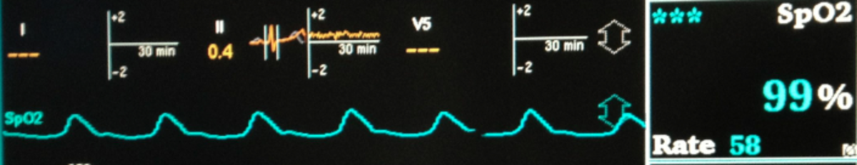 The pulse oximeter shows the heartbeats and displays the percent saturation of the blood with oxygen.