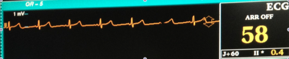 The EKG displays the heart rate and rhythm and gives other information about the health of the heart, as well.
