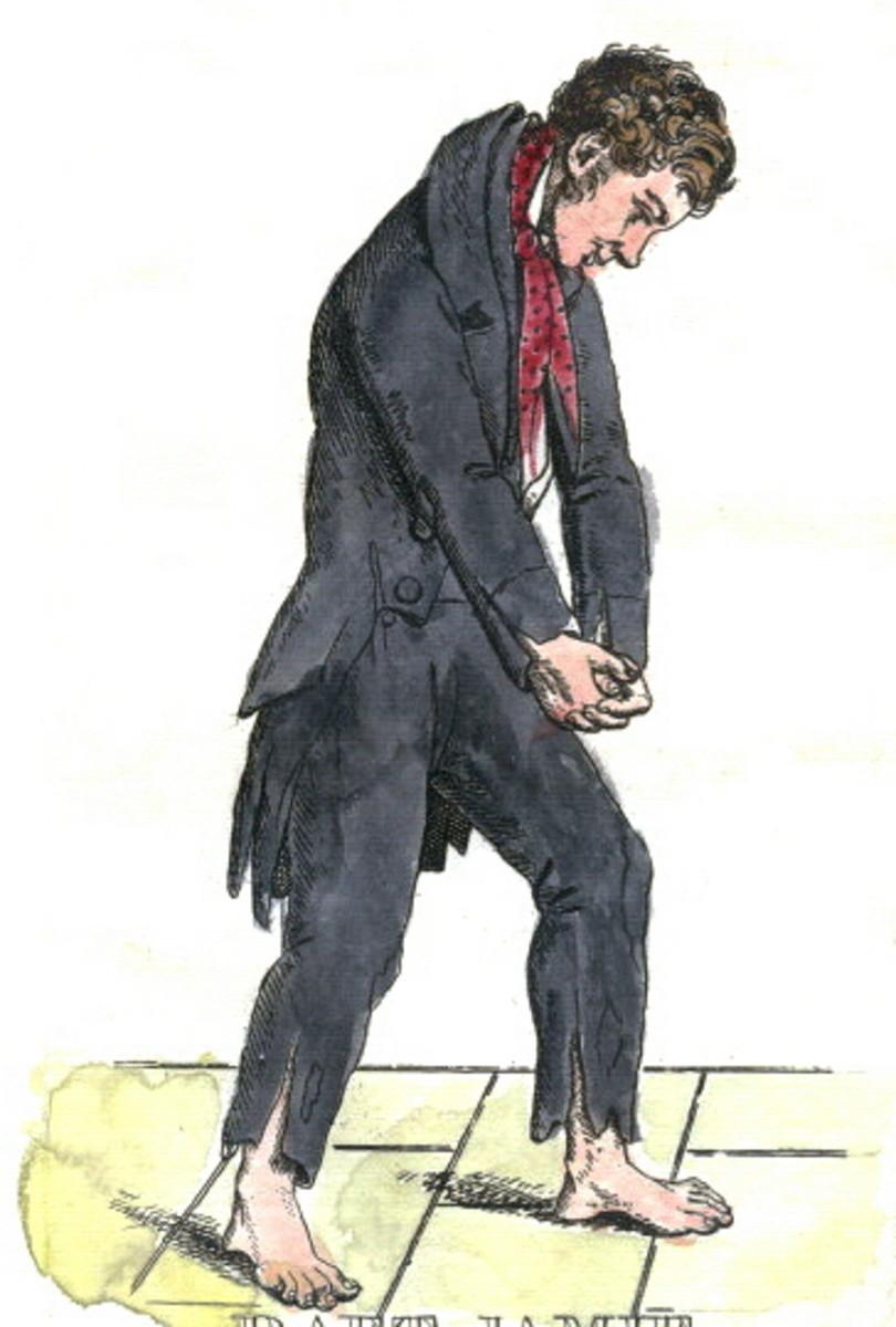 'Daft Jamie' - Burke and Hare murder victim