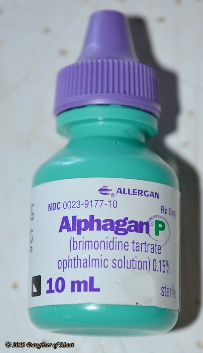 Alphagan P is one of the main medications used to treat open angle glaucoma.