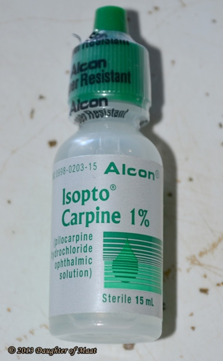 Isopto Carpine (most commonly called Pilocarpine) constricts the pupil. In urgent cases it is used prior to performing an LPI, and in less urgent cases it is used to to bring the pressure down.