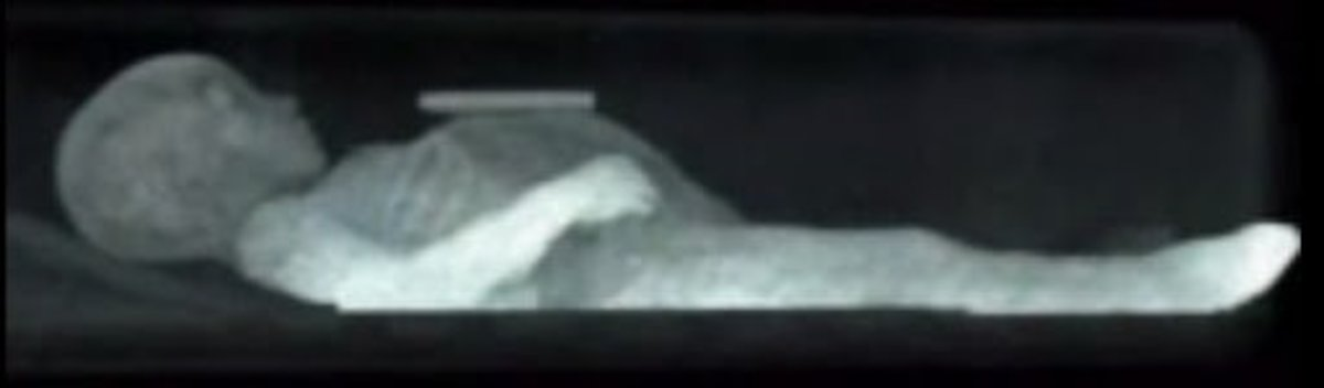This remarkable x-ray, clearly shows Rosalia's arms and feet.