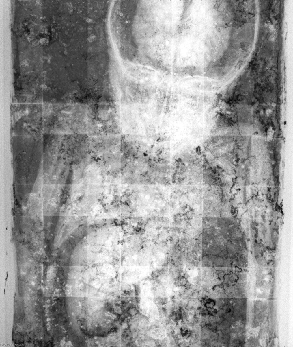 The x-ray of Rosalia showing her brain and liver intact. The grid is of the coffin beneath the body.