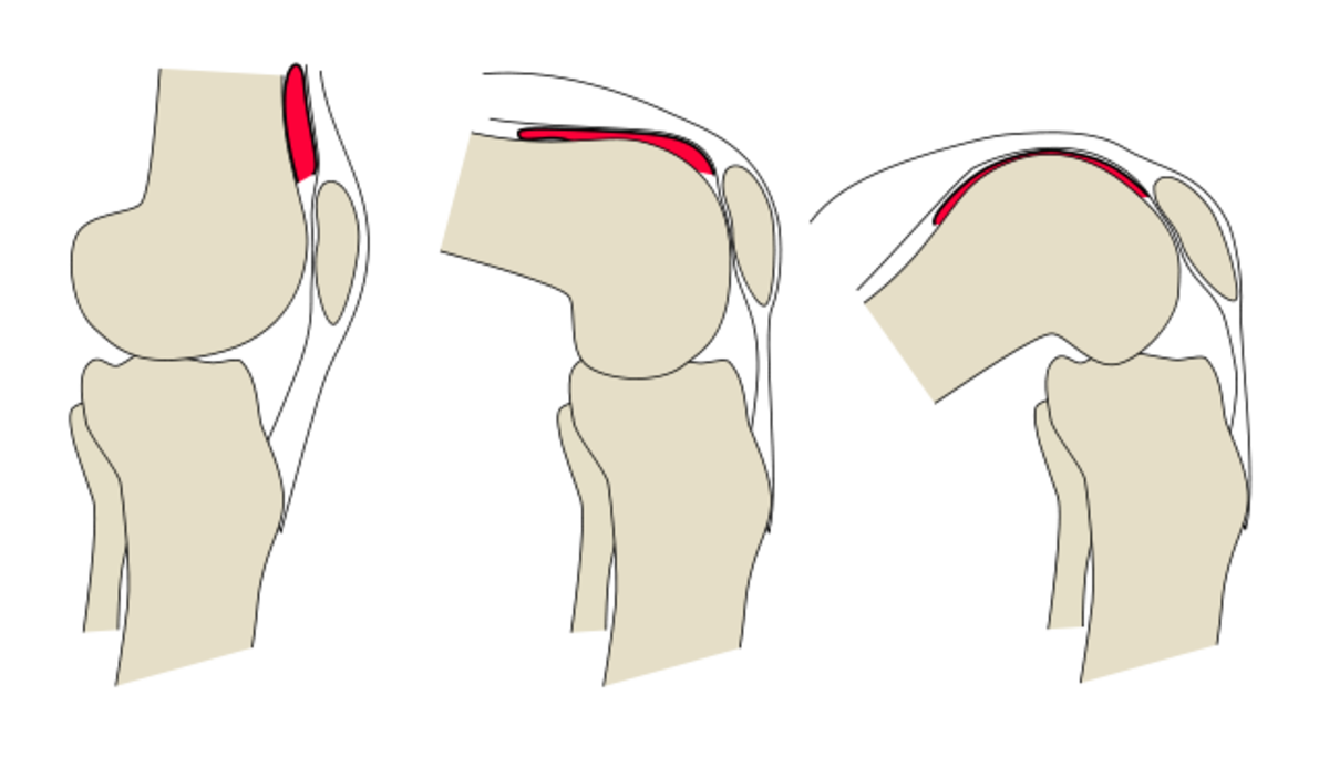 Rough illustration of knee flexion and extension in knee anatomy