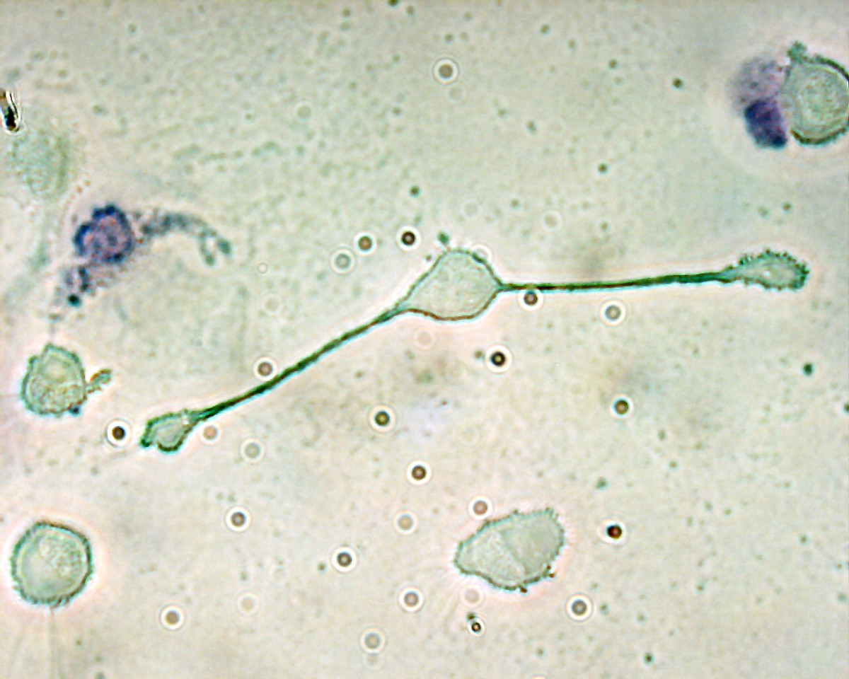 A macrophage extending its pseudopods, which it uses to engulf pathogens.