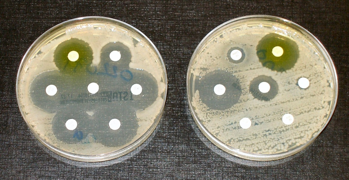 The bacteria in the dish on the left have been  killed by antibiotics released by the white disks. The bacteria in the dish on the right are resistant to some of the antibiotics, as shown by the lack of clear spaces around the disks.
