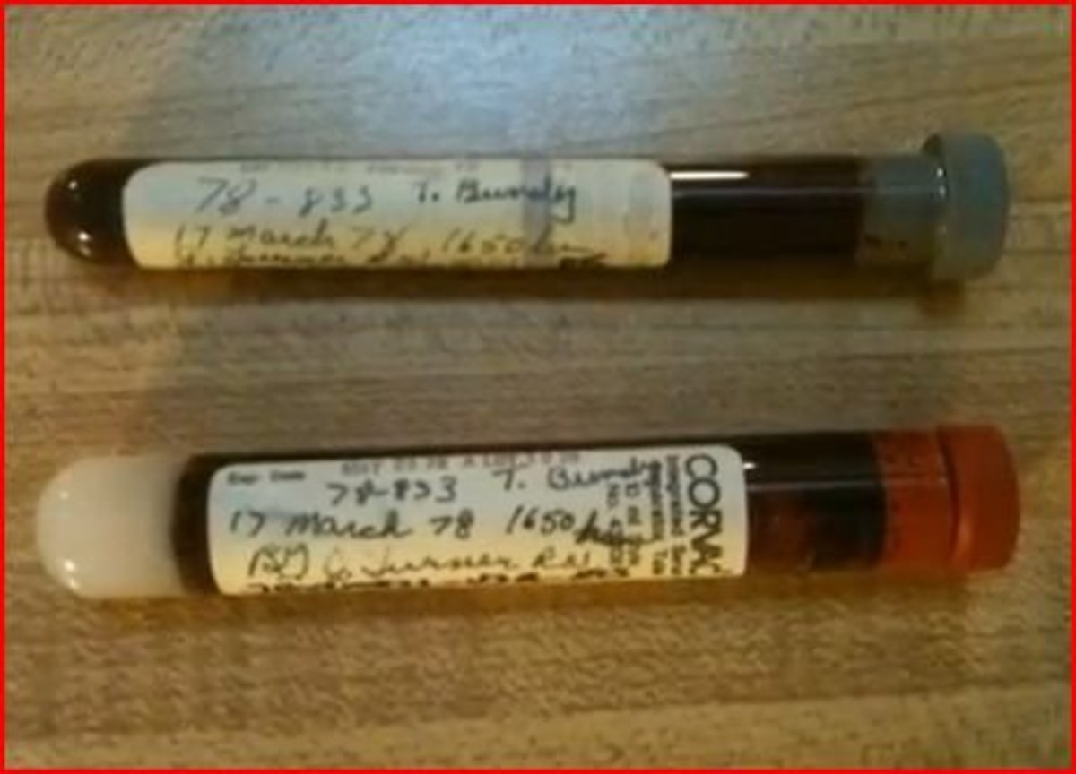Preserved blood sample taken from Ted Bundy March 17, 1978.