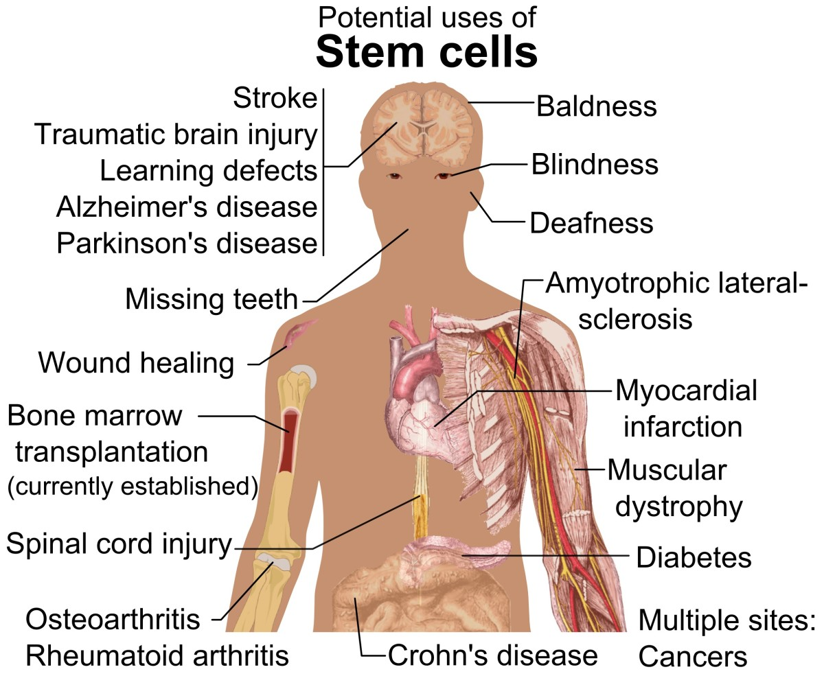 Some potential uses of stem cells