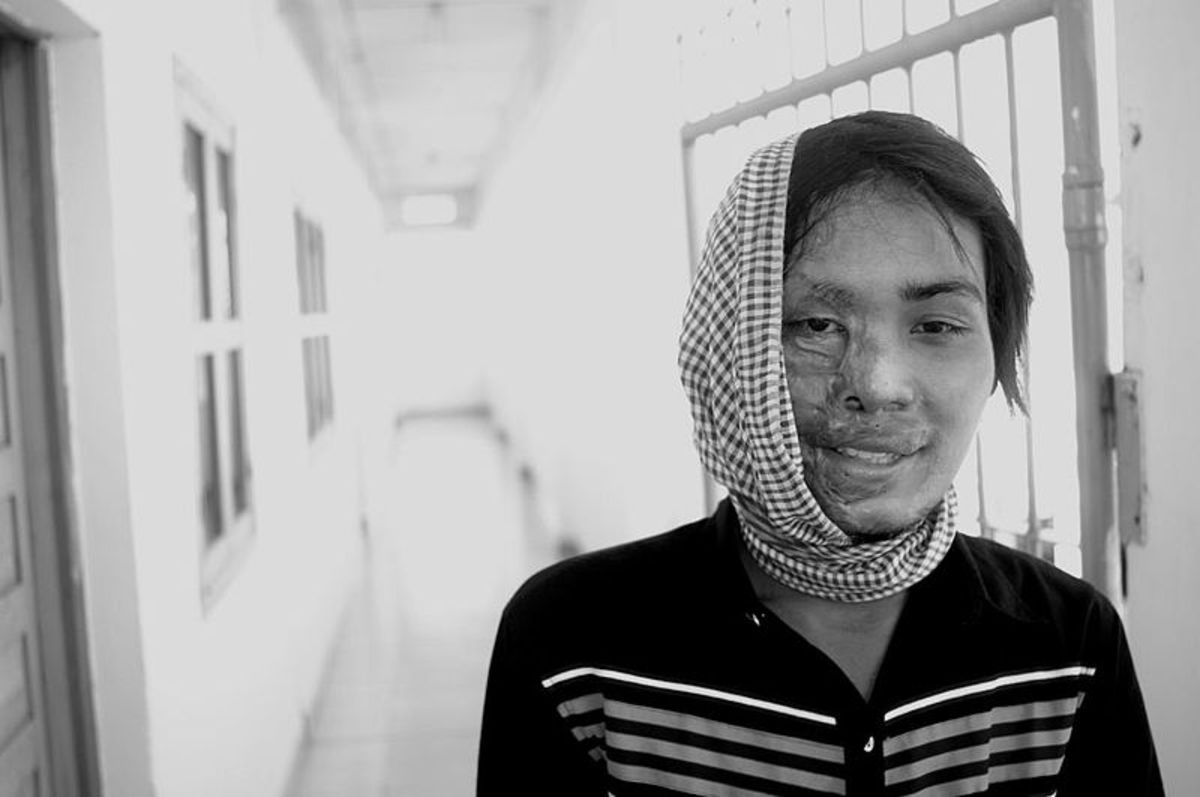 This Cambodian women was the victim of a brutal acid attack by a man. Today, sexual or gender inequality, despite the success of the feminist movement, is still a major problem in our society.