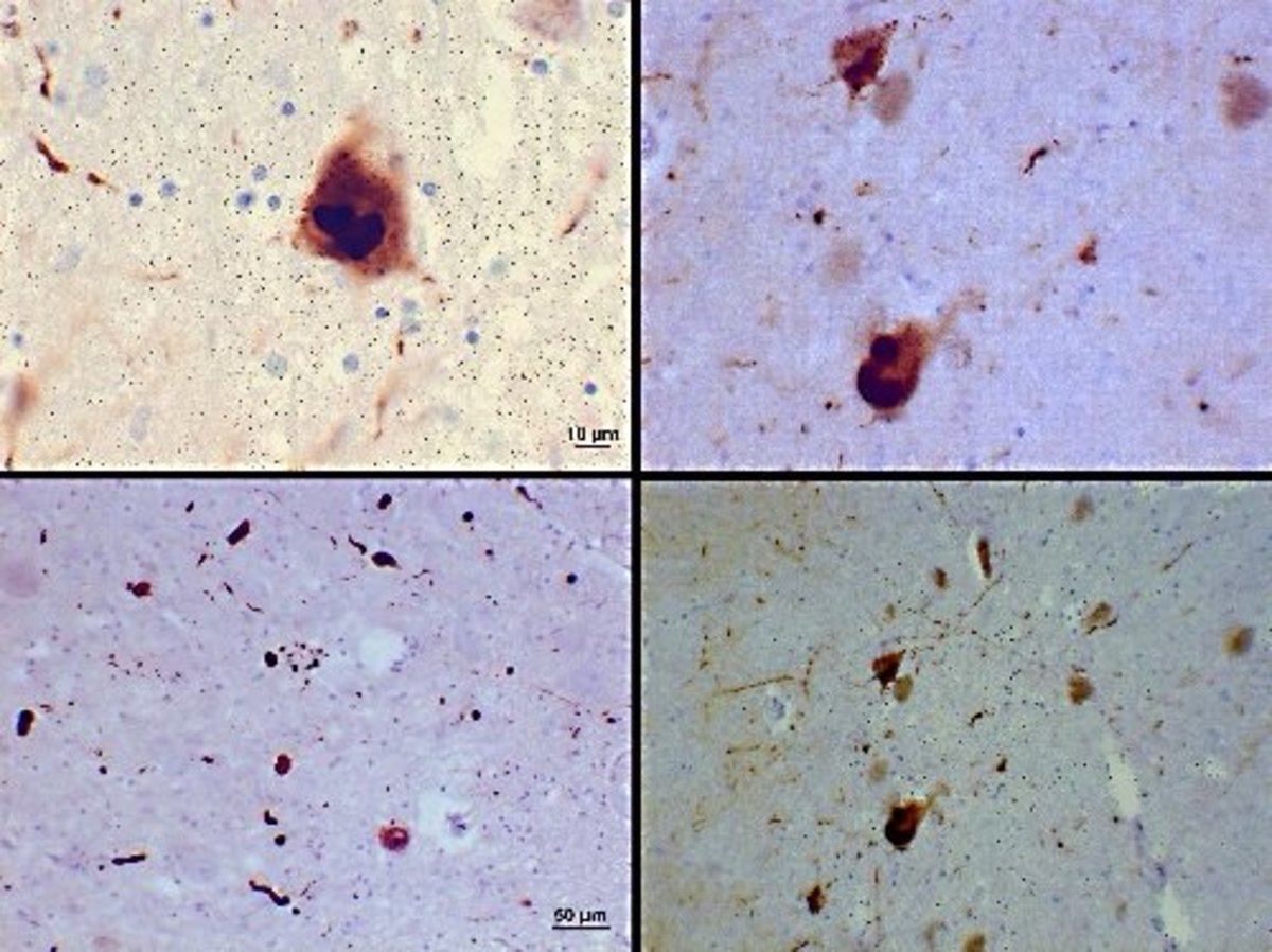 Lewy bodies in the substantia nigra of the brain; the bodies are made of alpha-synuclein fibrils