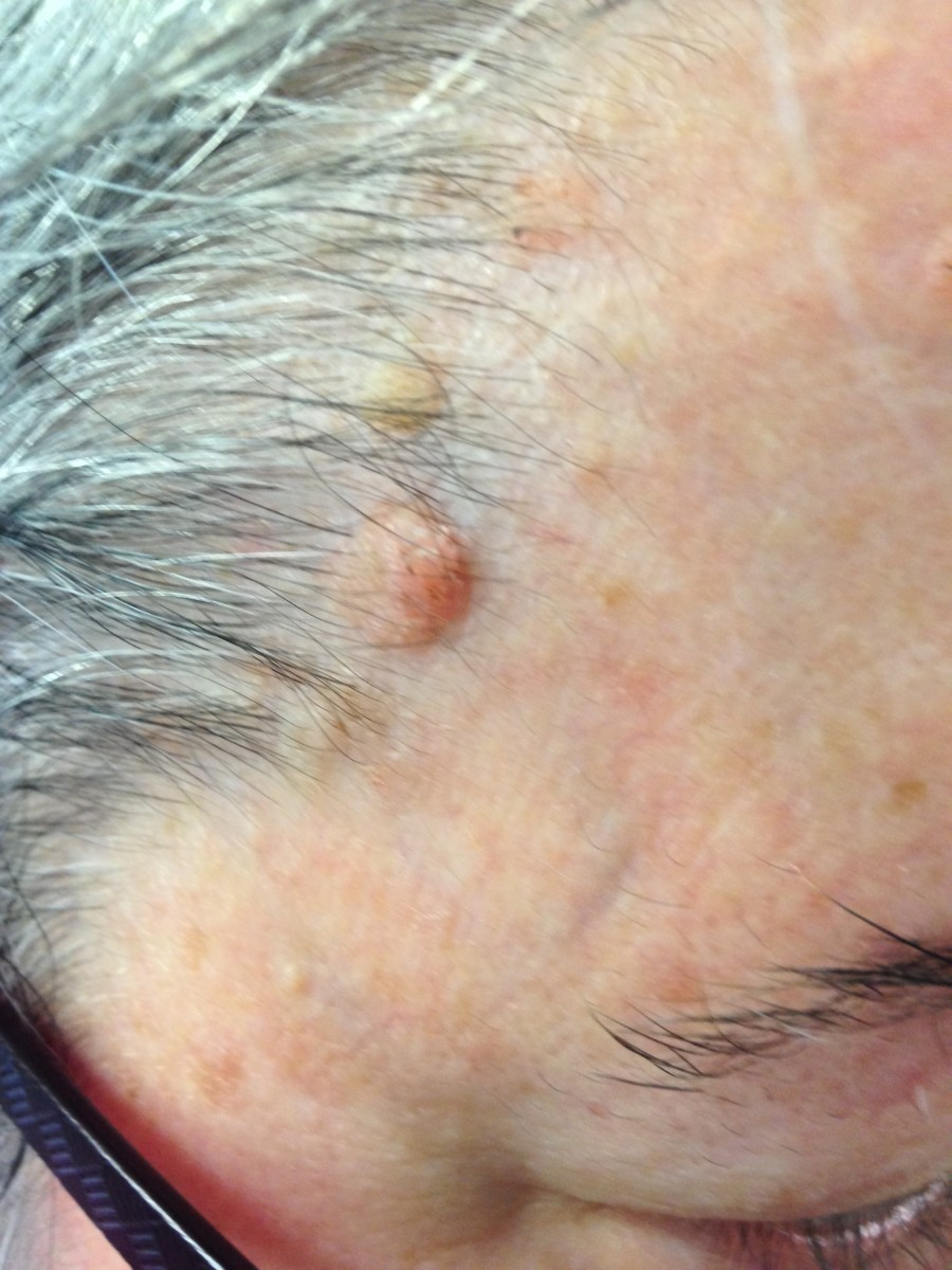 Aug 8, 2015. Primary lesion looks more raised. Surrounding lesions more obvious.