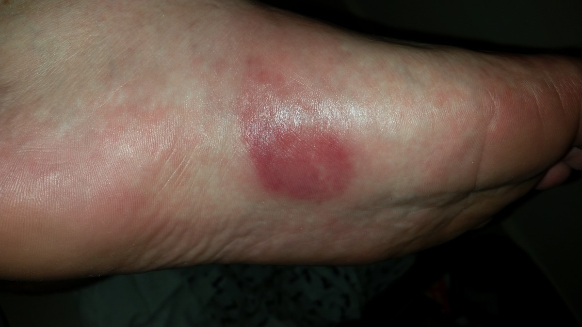 By day 2, the area was inflamed and very painful. I could barely walk on it and it was sore to touch